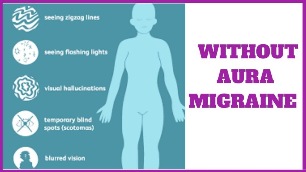 WITHOUT aura MIGRAINE